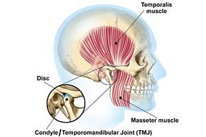 Tempromandibular Joint Disorder