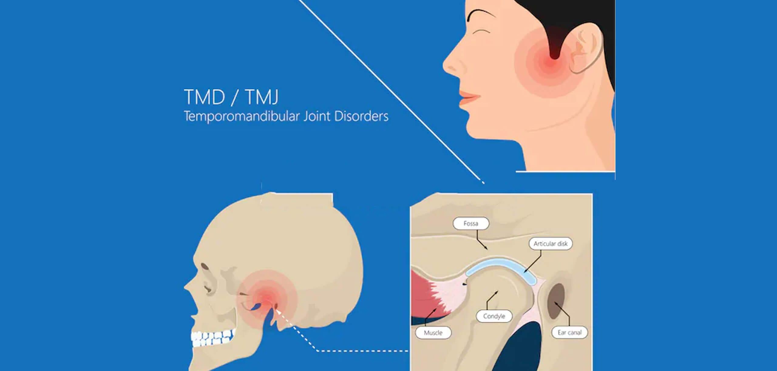 Temporomandibular Joint Disorder Near Gaithersburg Md Tmj